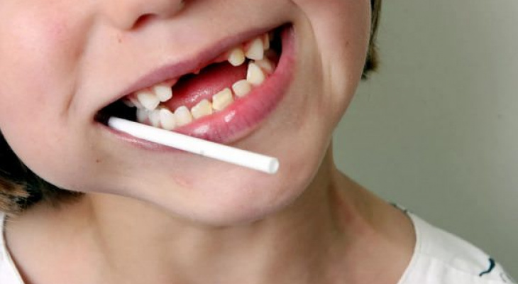 Стоматологи напоминают: в Новый год страдает не только фигура, но и зубы
